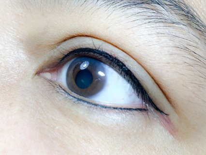 Eyeliner Cosmetic Tattoo 5